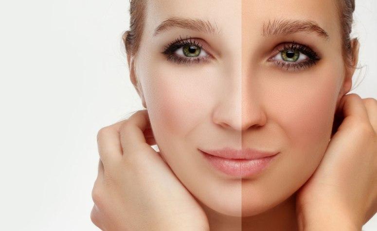 Lighten-Tanned-Skin